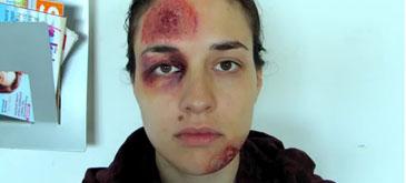 Campanie impotriva violentei domestice (2)